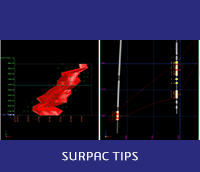 How to display and view data in plan and cross section view in Surpac