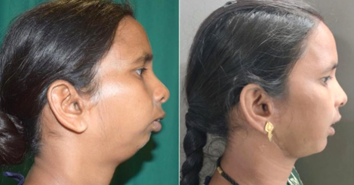 Pre-operative and Post-operative transformation of the patient- TMJ Ankylosis