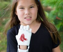 8-Year-Old with 3D-Printed Hand to Throw Opening Pitch for Red Sox on #Journeyto30