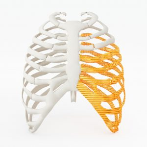 3d printed rib cage. 3d printed implants on white back