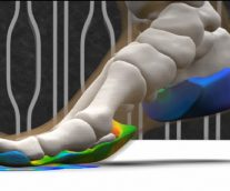Personalizing Orthopedics for Long-Term Success