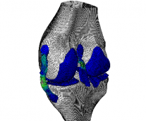 No Bones About it―Simulation is the Future of Orthopedics