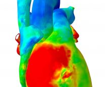 Love Your Heart: Personalized Digital Human Heart Models