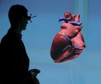 The Living Heart Project Pushes the Boundaries of Science to Transform Patient Care